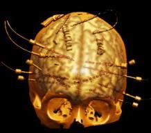 Escáner del cerebro con los electrodos que usan los médicos para localizar el origen de los problemas epilépticos.