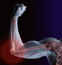 Al golpearnos el codo, un intenso calambre recorre el antebrazo hasta la mano