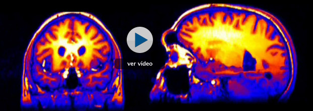 El alma est&aacute; en la red del cerebro
