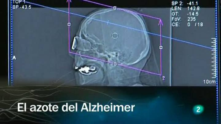 Redes - El azote del Alzheimer