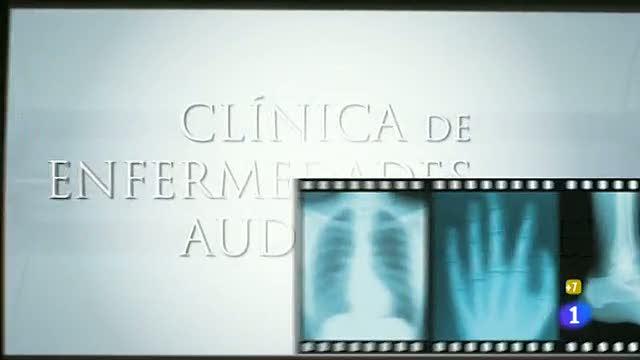 La hora de José Mota - Enfermedades audiovisuales la post-producción