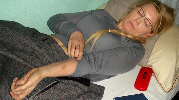 Fotografía de Yulia Tymoshenko, que muestra las supuestas heridas causadas por los guardias, el pasado 25 de abril