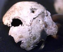 Fragmento del cráneo de Adolf Hitler expuesto en el Museo Soviético de Moscú