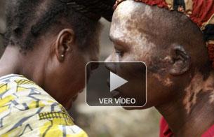 Ver vídeo  'Las heridas de Françoise'