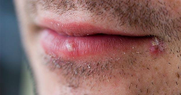 Herpes labial.