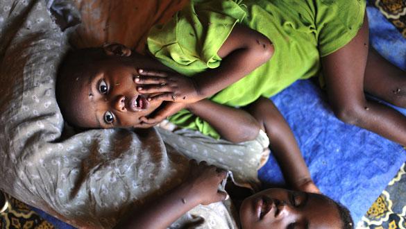 Dos niños son atendidos en un campo de refugiados del Cuerno de África.