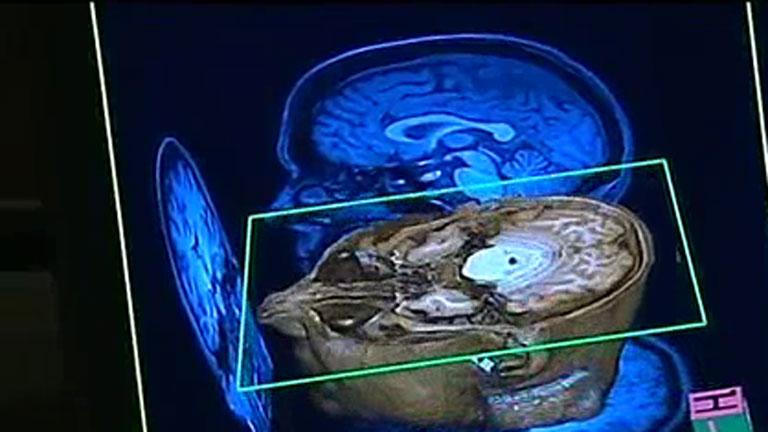 Un científico español lidera el proyecto para crear un mapa del cerebro humano