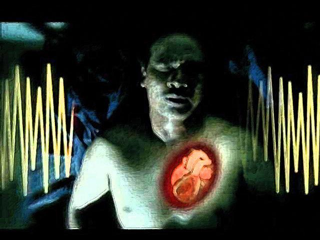 La muerte súbita cardiaca (parada cardiorrespiratoria o PCR) es un problema de salud de primer orden