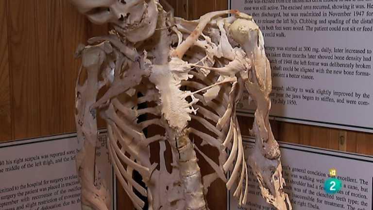 http://img.irtve.es/imagenes/noche-tematica-unos-huesos-extraordinarios/1362269973321.JPG