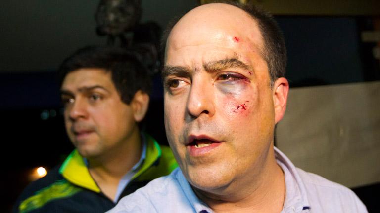 Diputados opositores se enfrentan a golpes en la Asamblea Nacional de Venezuela