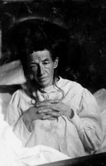 Augusta D, primera paciente de Alzheimer, en una foto de 1902