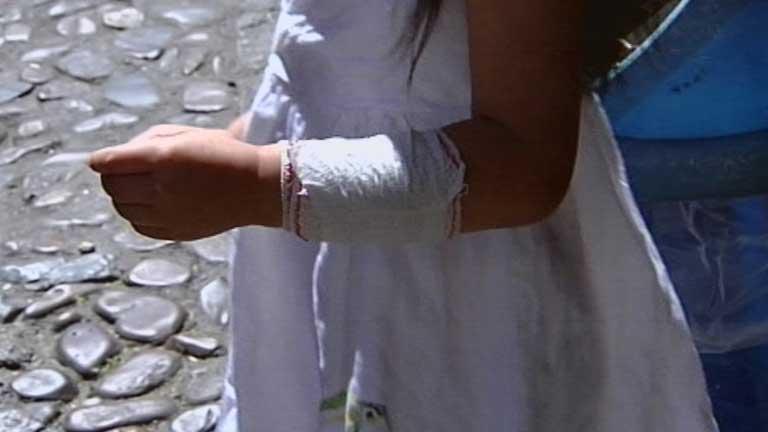 Un pitbull suelto en Toledo ataca tres niños