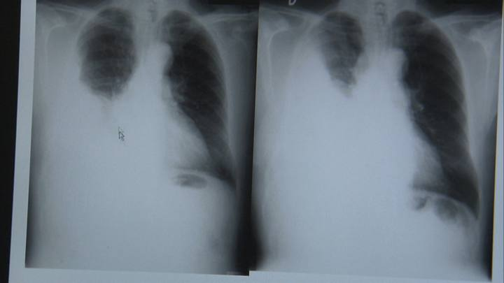 Placa de rayos X con mesioteloma, cáncer de pleura, enfermedad exclusiva de la exposición al amianto