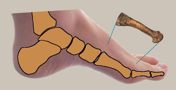 La planta del pie arqueada y flexible es característica de nuestra forma de caminar