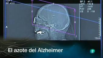 Ver vídeo  'Redes - El azote del Alzheimer'