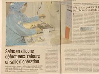 Ver vídeo  'Regreso al quirófano de 30.000 mujeres con implantes mamarios en Francia'