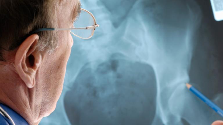 Saber vivir  - La salud de la cadera (07/12/11)