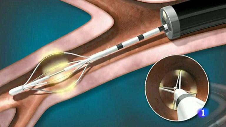 Se crea un nuevo tratamiento que mejora los síntomas en enfermos con asma grave